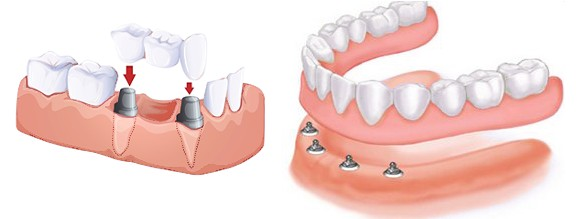 protetica implant dentar