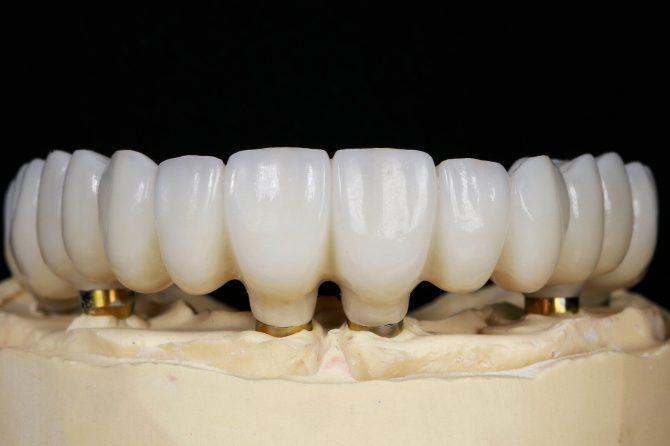 Zâmbetul nu are vârstă. Protezele pe implanturi, soluția ideală pentru un zâmbet recreat