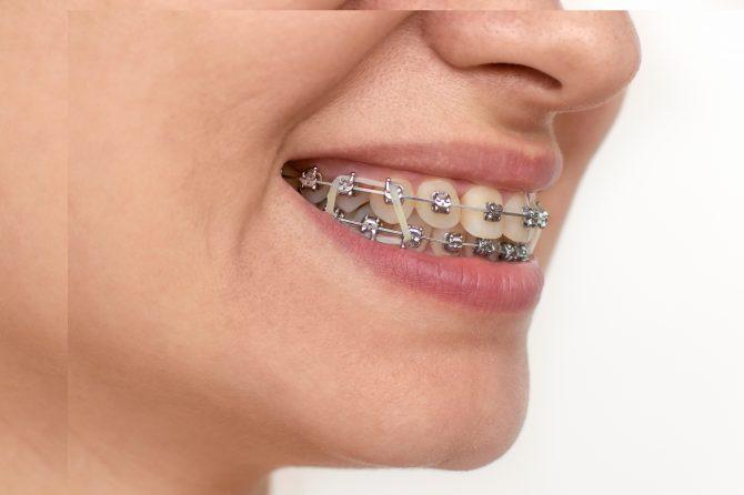 Curiozități despre aparatul dentar. Ce rol au elasticele atasate aparatelor dentare?