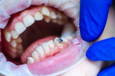 Cum îți dai seama că trebuie să mergi la medicul ortodont. Specialistul Smile Dent îți explică