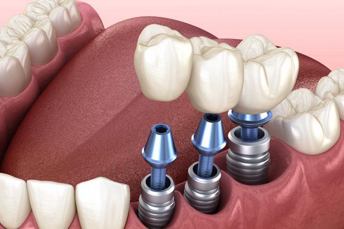 """""""Sufăr de diabet. Îmi pot pune implanturi dentare?"""" Specialiștii Smile Dent îți oferă răspunsul"""