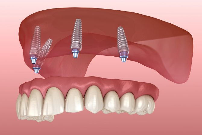 All-on-4, totul despre sistemul de implanturi care asigură un zâmbet perfect în cel mai scurt timp