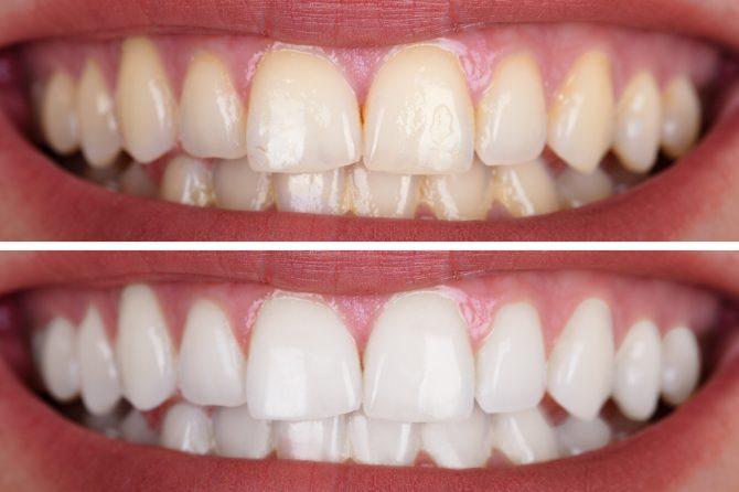 De ce ni se îngălbenesc dinții? Iată ce soluții îți propunem pentru un zâmbet strălucitor